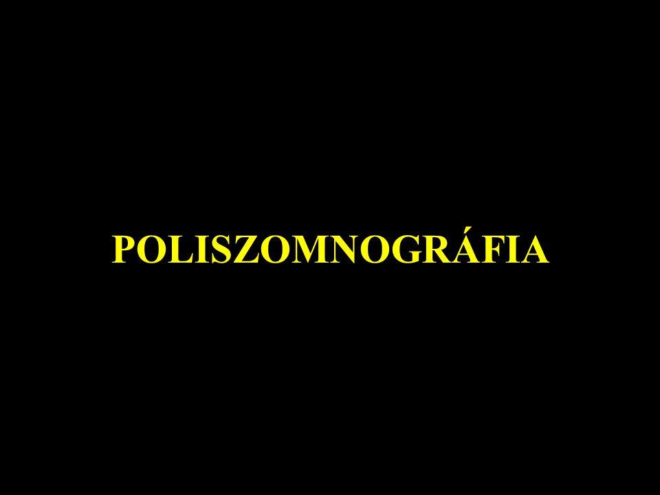 POLISZOMNOGRÁFIA