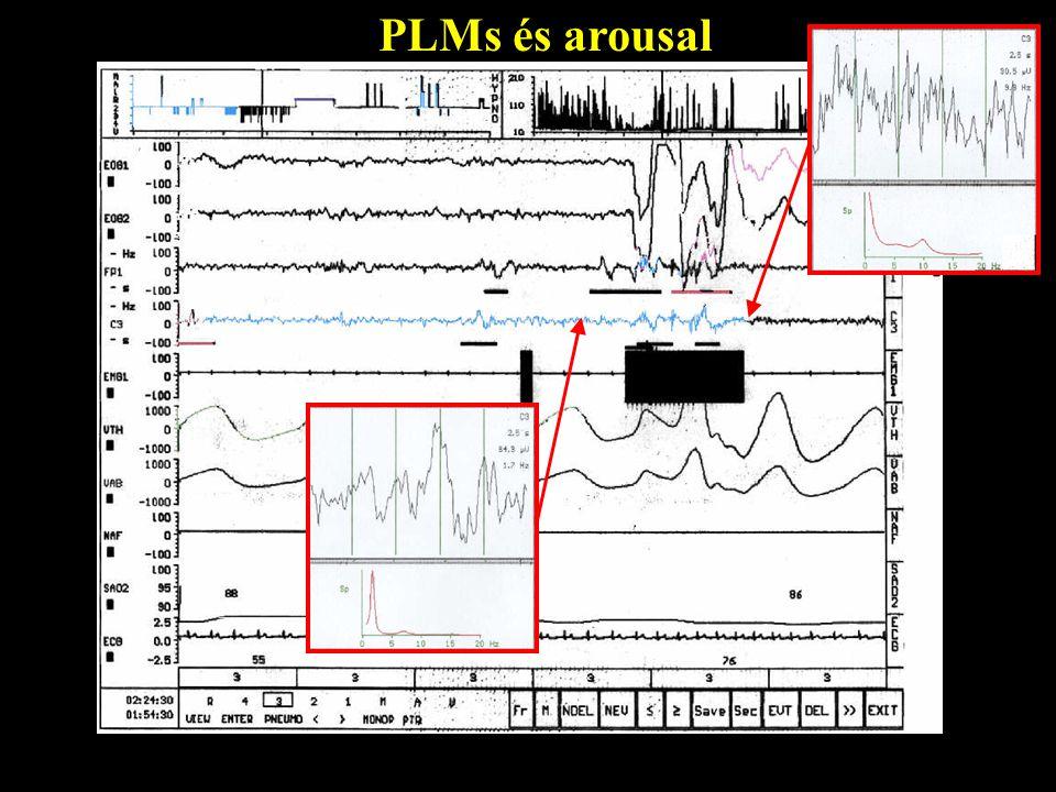 PLMs és arousal