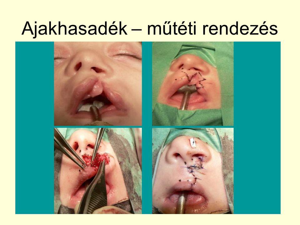 Ajakhasadék – műtéti rendezés