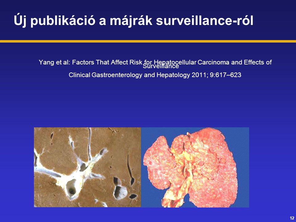 Clinical Gastroenterology and Hepatology 2011; 9:617–623