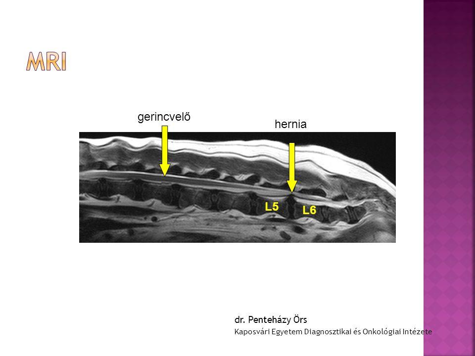 MRI gerincvelő hernia L5 L6 dr. Penteházy Örs