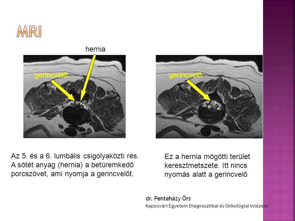 MRI hernia gerincvelő gerincvelő