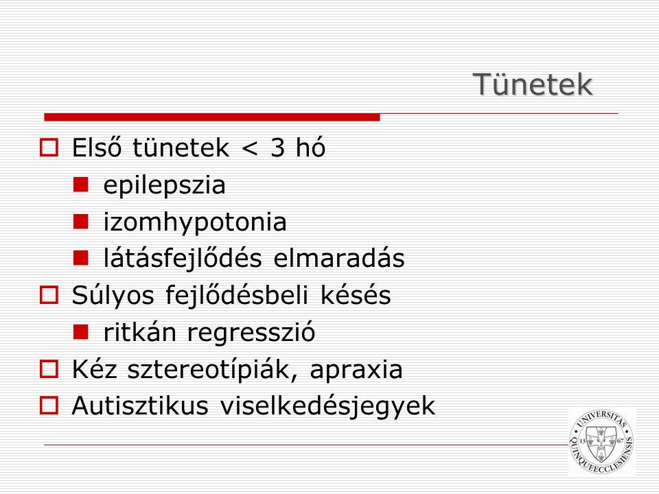 Tünetek Első tünetek < 3 hó epilepszia izomhypotonia