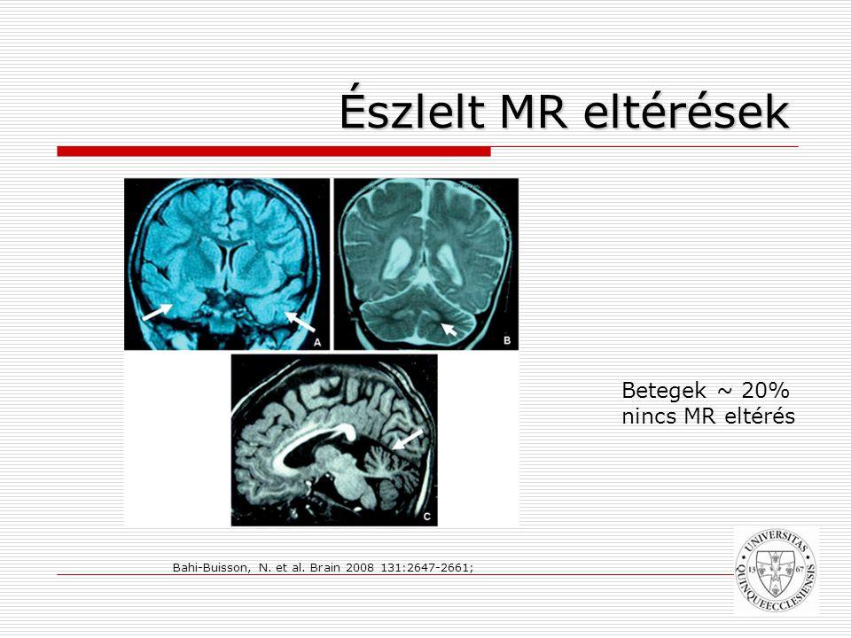Észlelt MR eltérések Betegek ~ 20% nincs MR eltérés