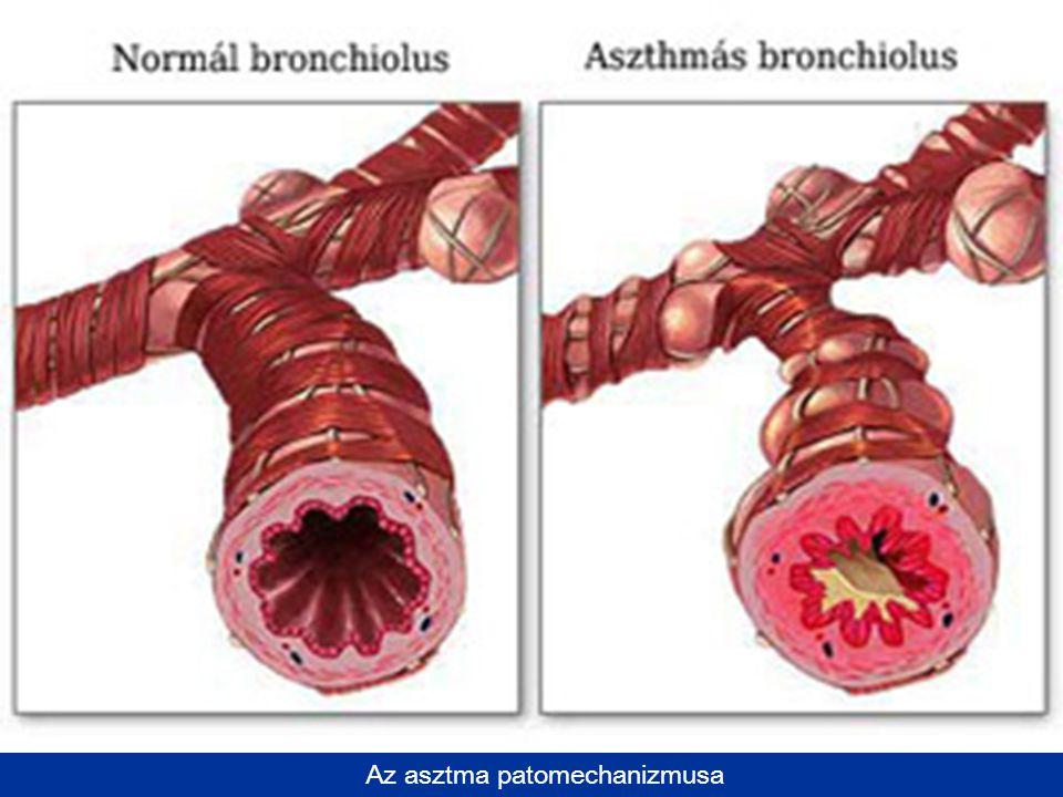 Az asztma patomechanizmusa