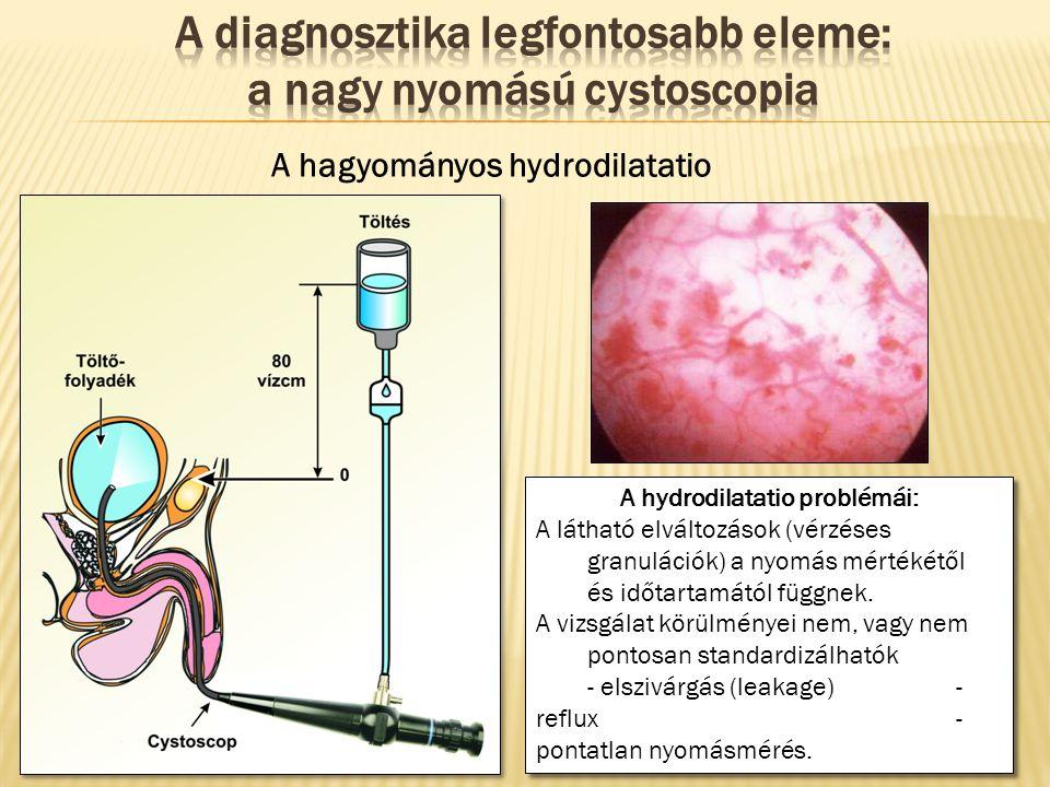 A diagnosztika legfontosabb eleme: a nagy nyomású cystoscopia