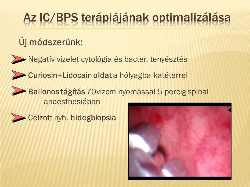 Az IC/BPS terápiájának optimalizálása
