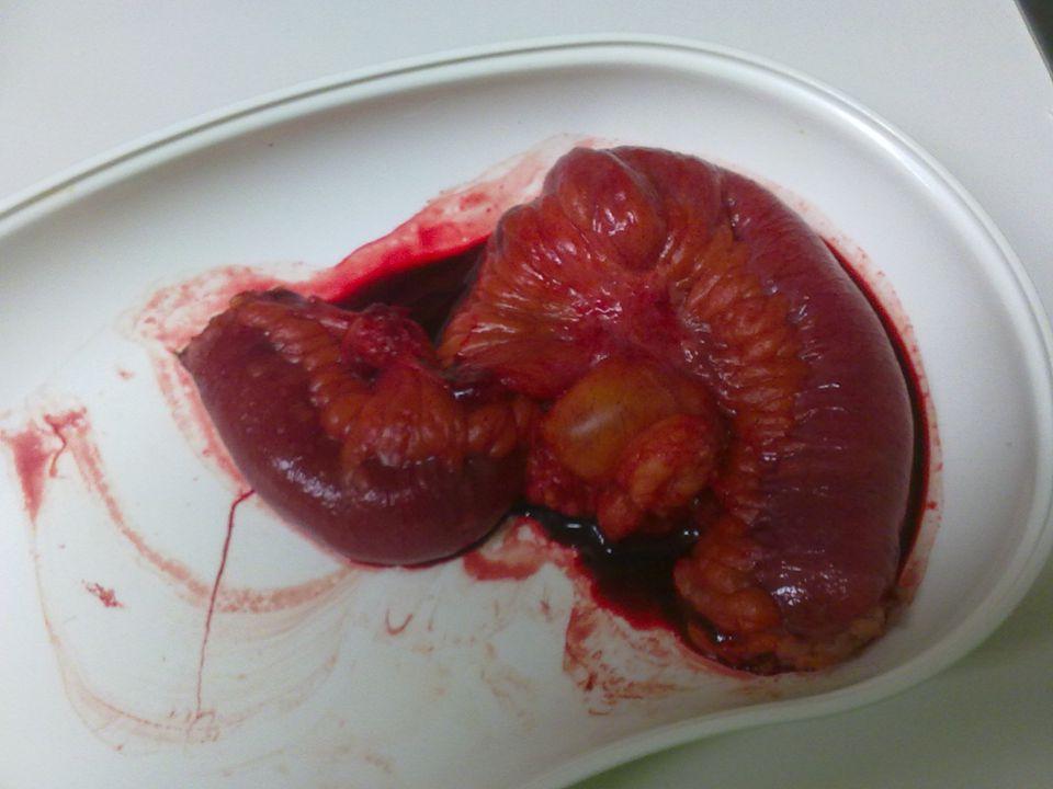 Műtét alatti kép
