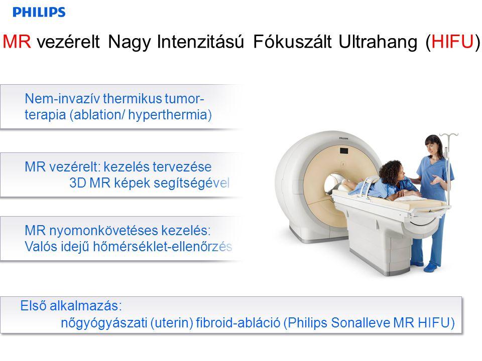 MR vezérelt Nagy Intenzitású Fókuszált Ultrahang (HIFU)