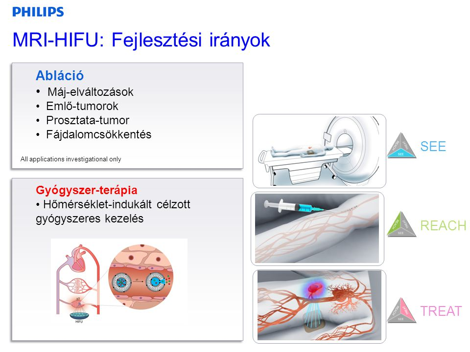 MRI-HIFU: Fejlesztési irányok