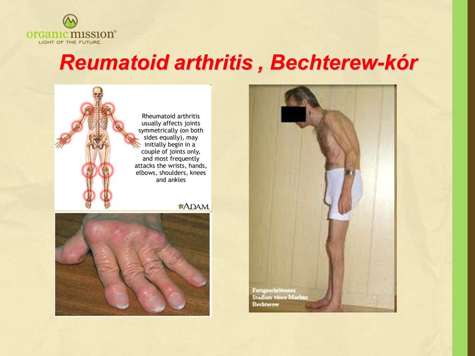 Reumatoid arthritis , Bechterew-kór