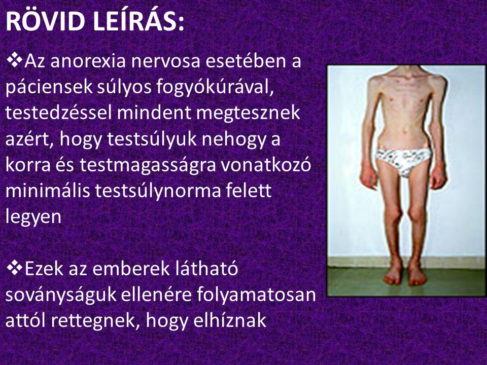 RÖVID LEÍRÁS: Az anorexia nervosa esetében a