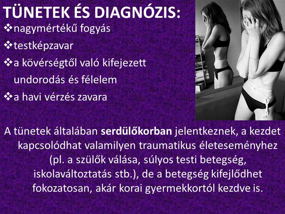 TÜNETEK ÉS DIAGNÓZIS: nagymértékű fogyás testképzavar