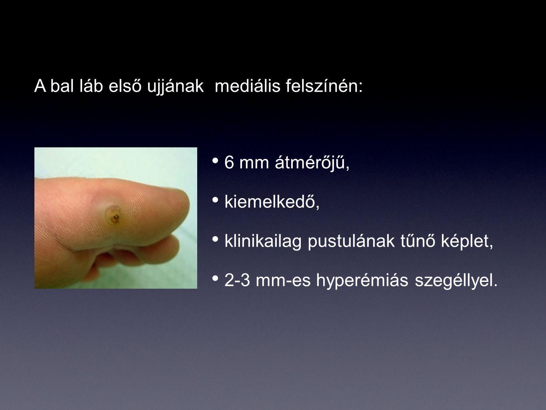 A bal láb első ujjának mediális felszínén: