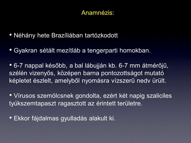 Anamnézis: Néhány hete Brazíliában tartózkodott. Gyakran sétált mezítláb a tengerparti homokban.