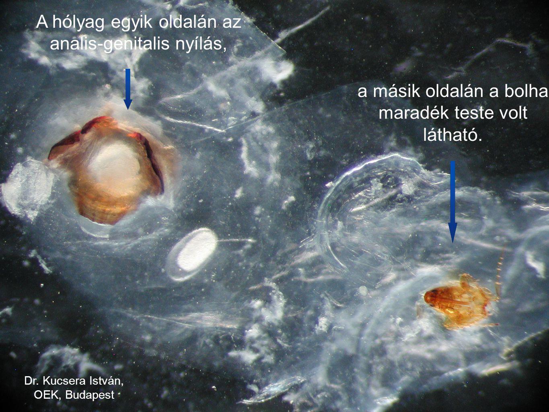 A hólyag egyik oldalán az analis-genitalis nyílás,