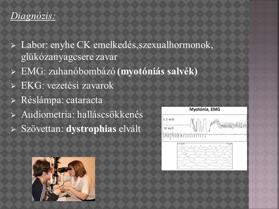 Labor: enyhe CK emelkedés,szexualhormonok, glükózanyagcsere zavar