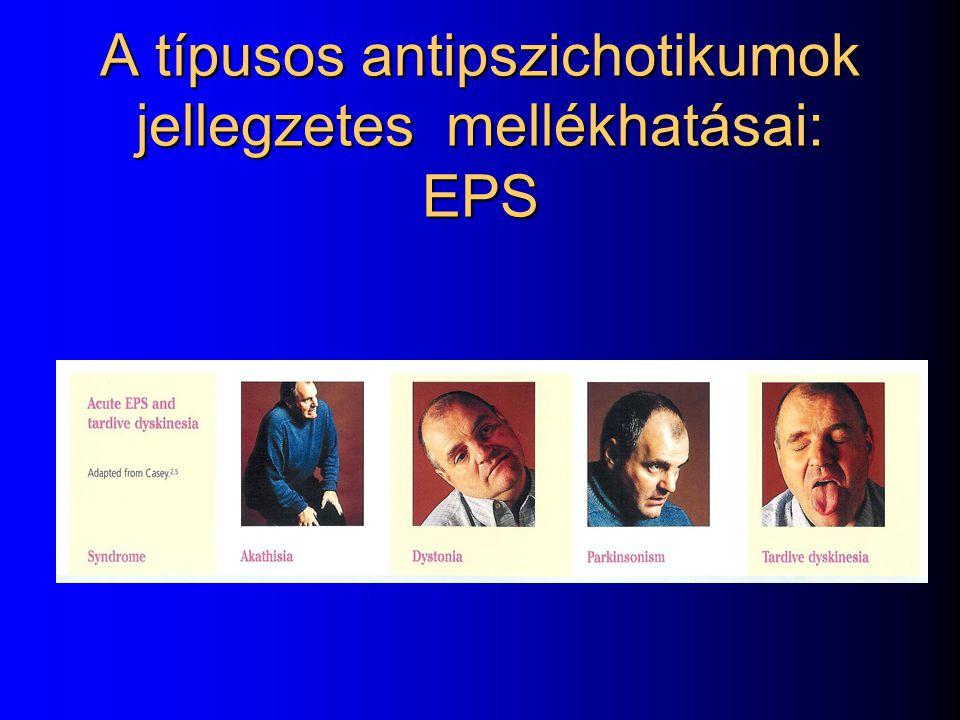 A típusos antipszichotikumok jellegzetes mellékhatásai: EPS