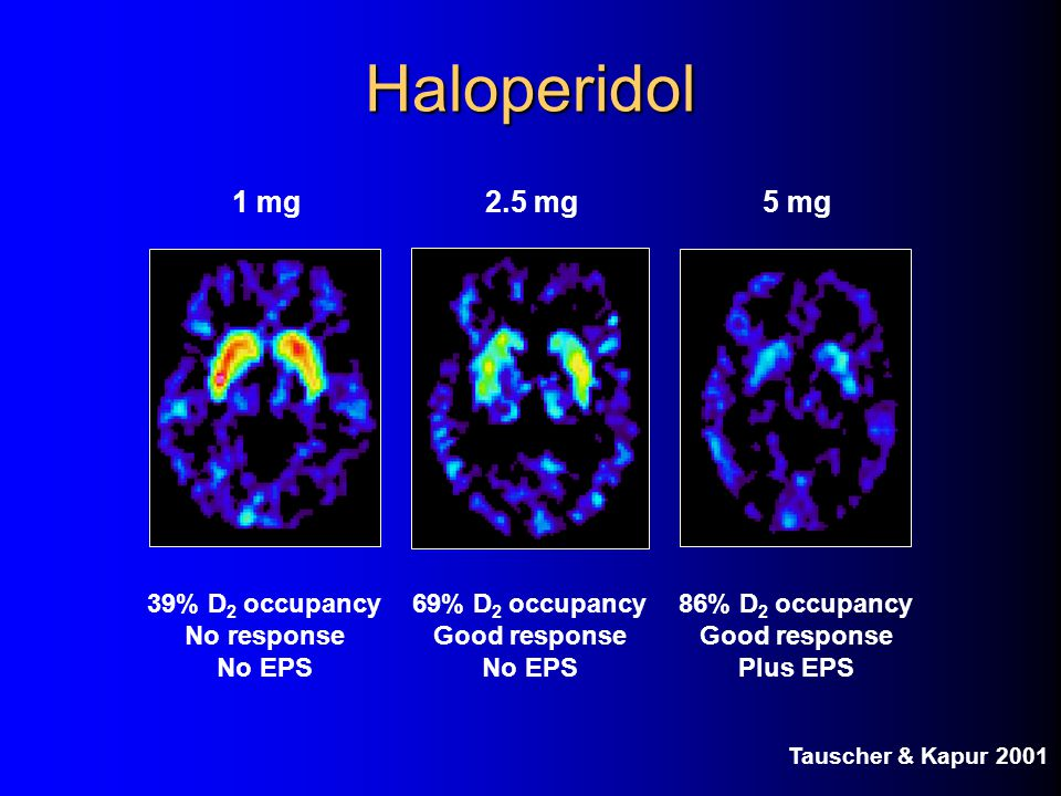 Haloperidol 1 mg 2.5 mg 5 mg 39% D2 occupancy No response No EPS