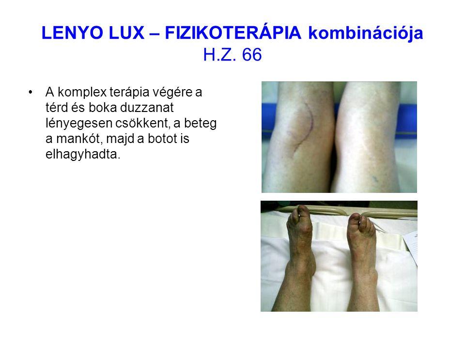 LENYO LUX – FIZIKOTERÁPIA kombinációja H.Z. 66