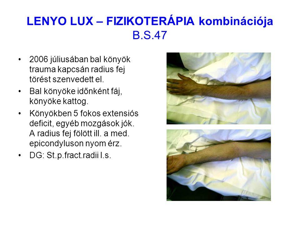 LENYO LUX – FIZIKOTERÁPIA kombinációja B.S.47