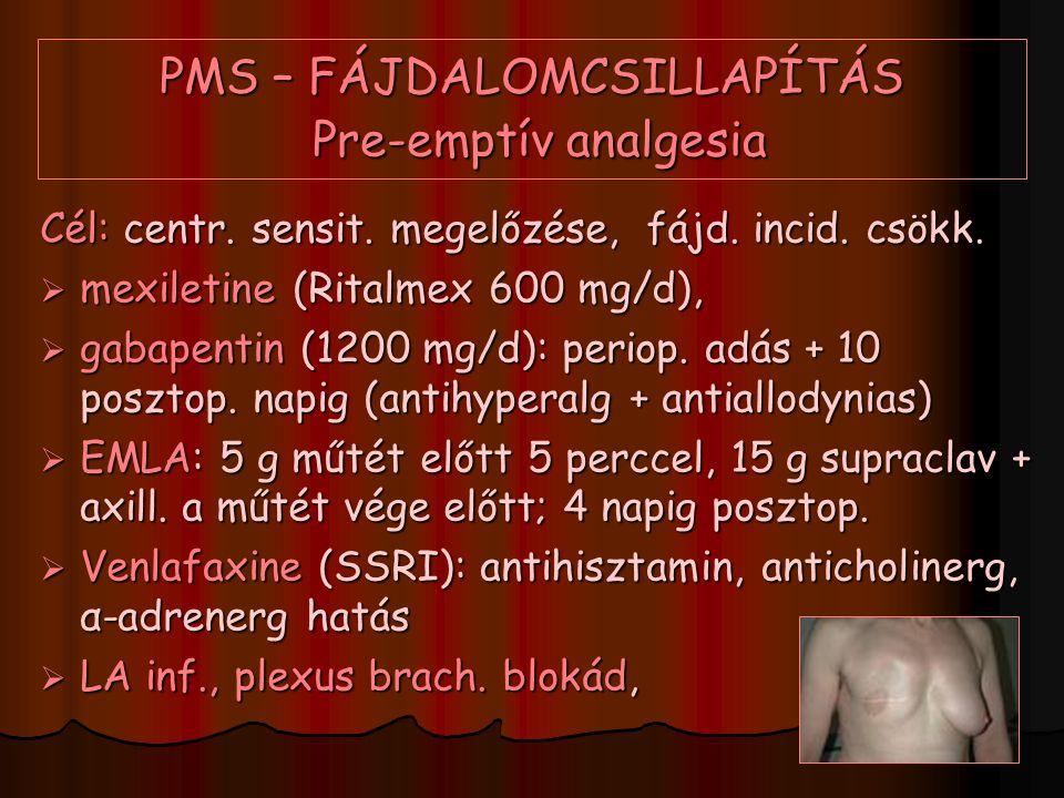 PMS – FÁJDALOMCSILLAPÍTÁS Pre-emptív analgesia