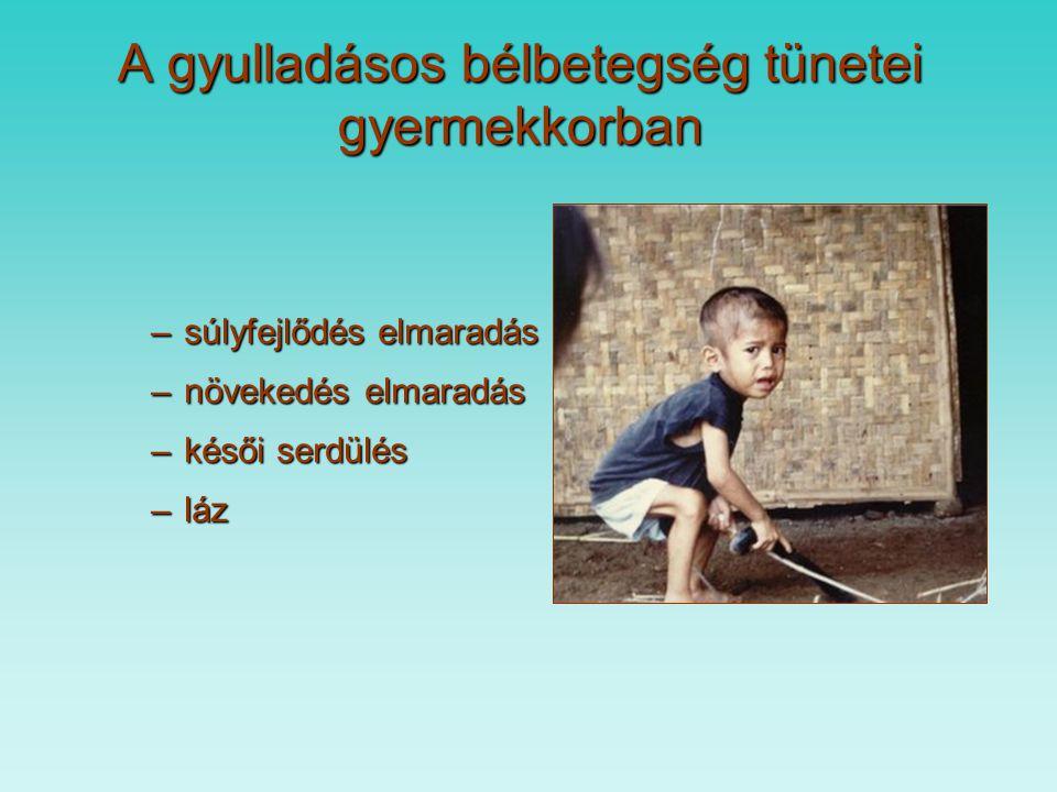 A gyulladásos bélbetegség tünetei gyermekkorban