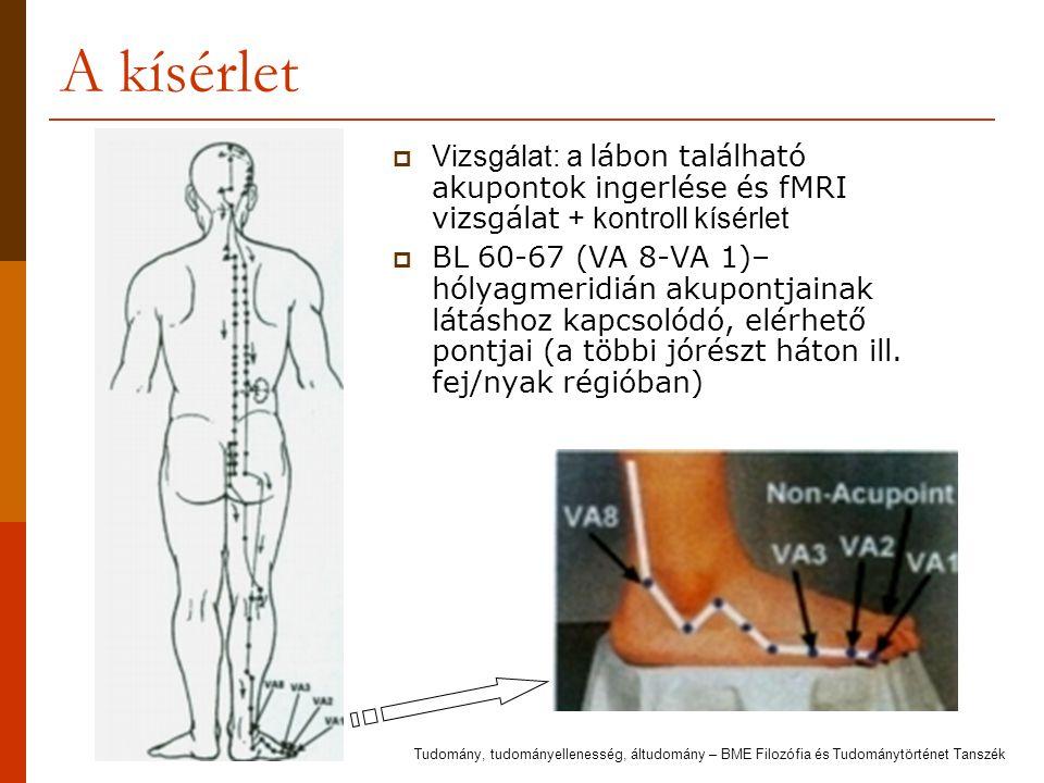 A kísérlet Vizsgálat: a lábon található akupontok ingerlése és fMRI vizsgálat + kontroll kísérlet.