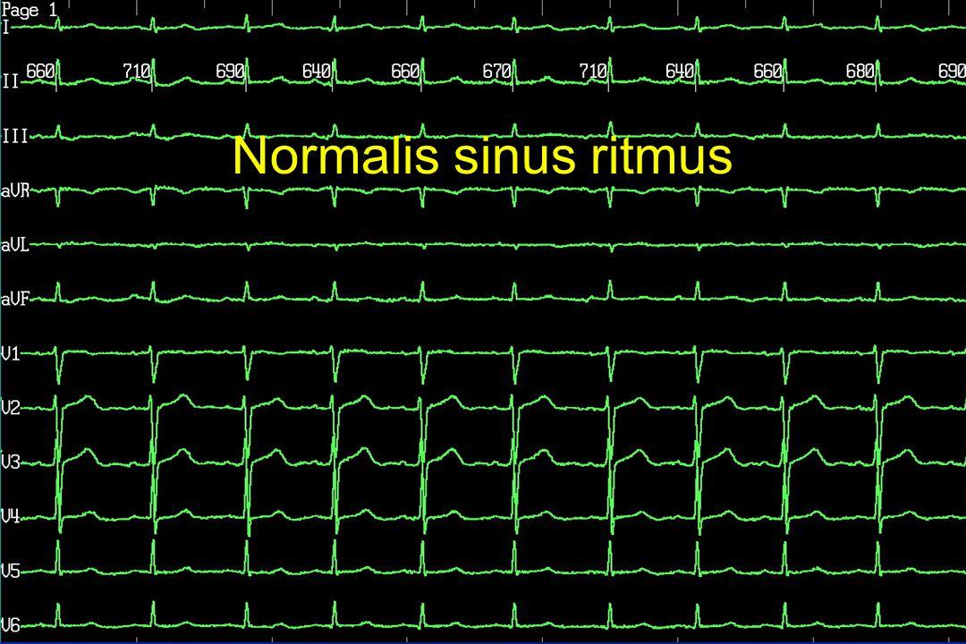 Normalis sinus ritmus