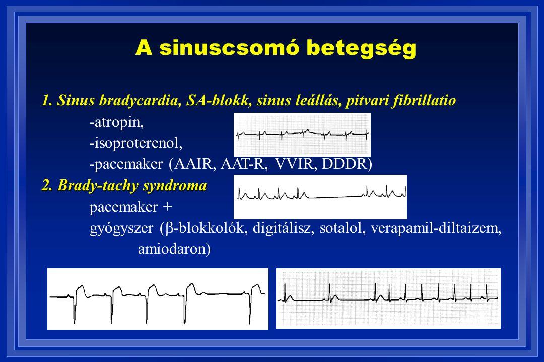 A sinuscsomó betegség 1. Sinus bradycardia, SA-blokk, sinus leállás, pitvari fibrillatio. -atropin,