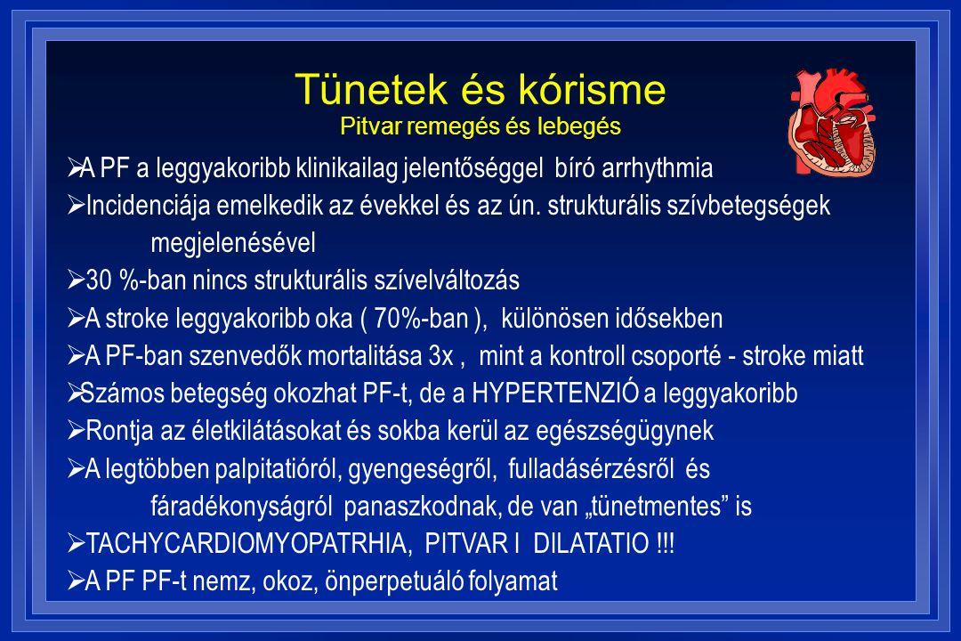 Tünetek és kórisme Pitvar remegés és lebegés