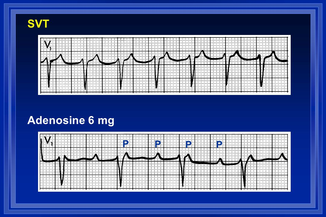 SVT Adenosine 6 mg P P P P