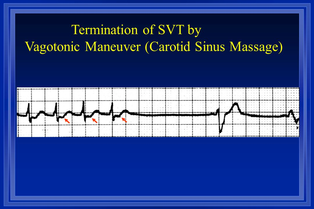 Vagotonic Maneuver (Carotid Sinus Massage)