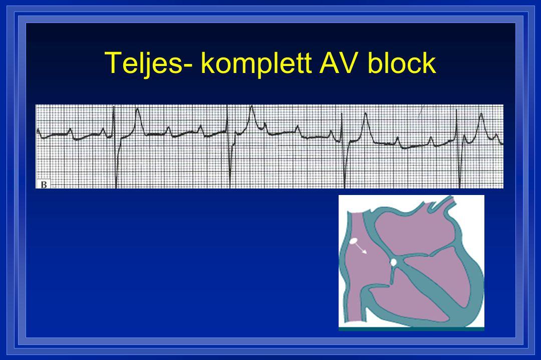 Teljes- komplett AV block
