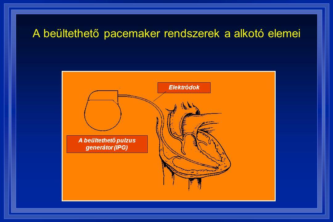 A beültethető pacemaker rendszerek a alkotó elemei