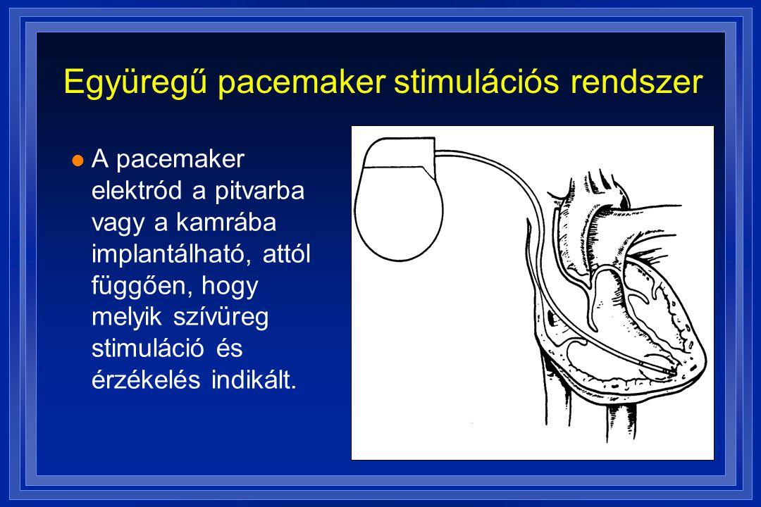 Együregű pacemaker stimulációs rendszer