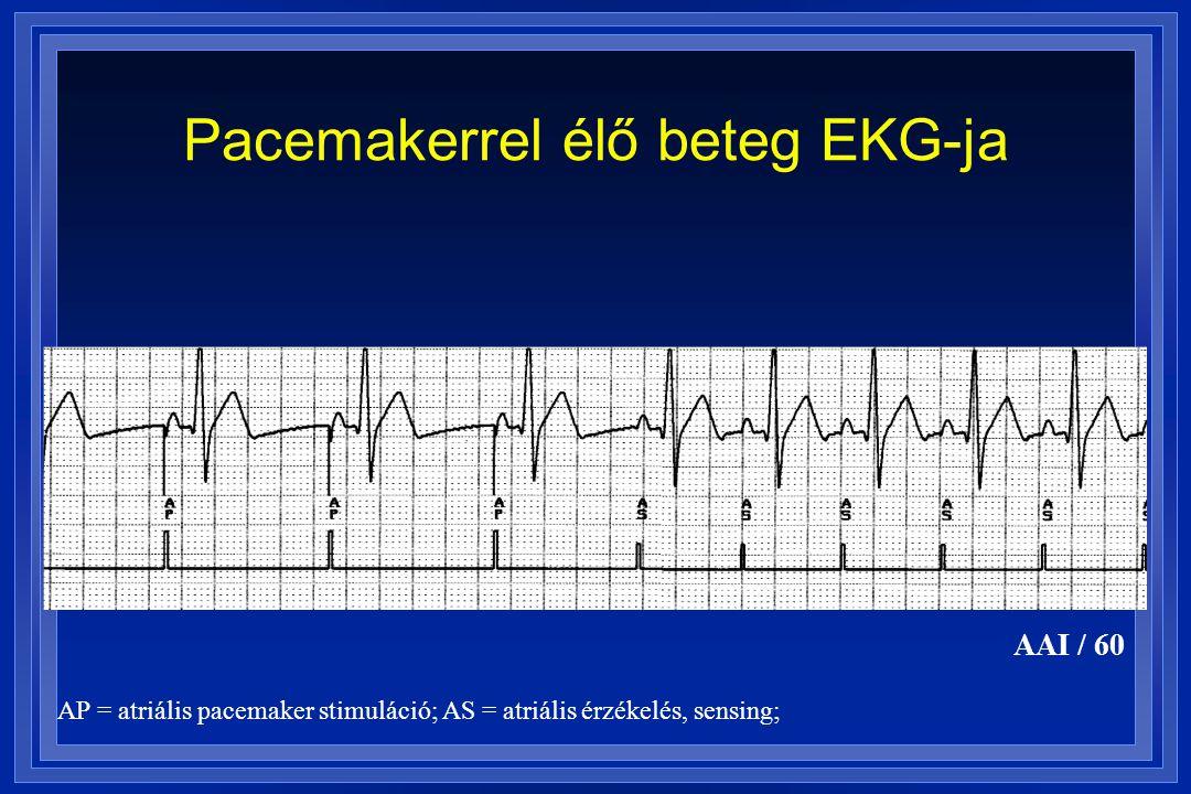 Pacemakerrel élő beteg EKG-ja