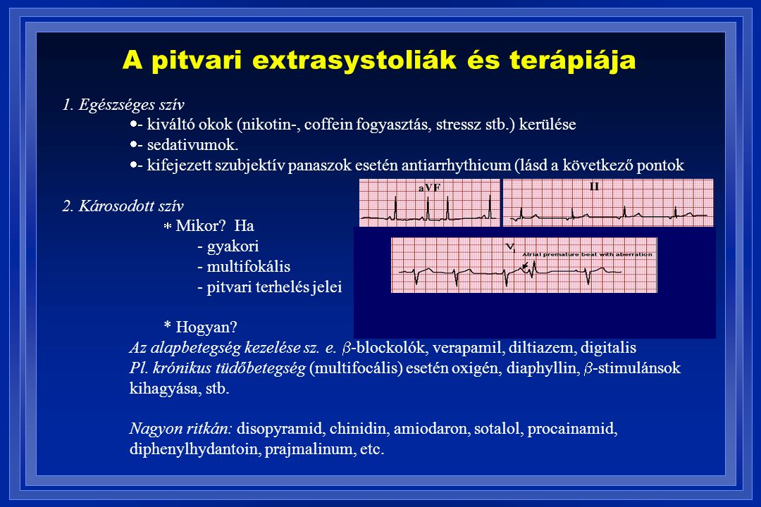 A pitvari extrasystoliák és terápiája