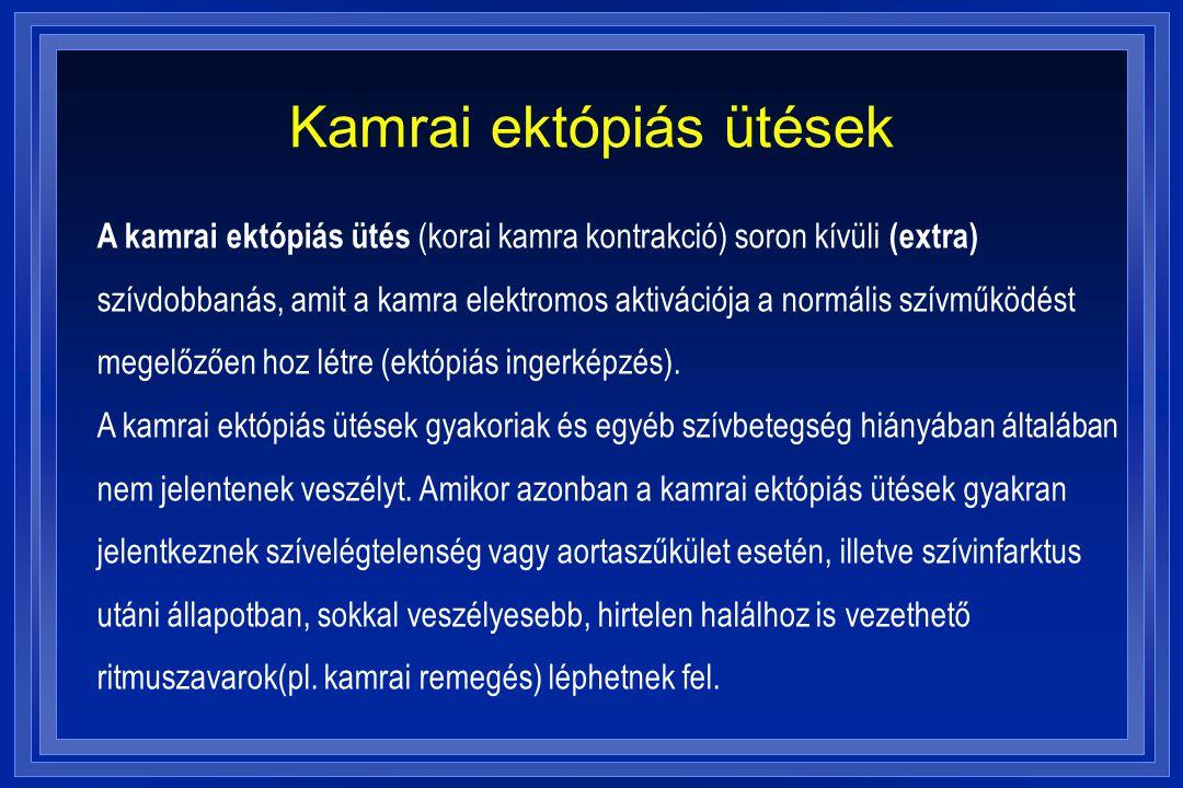 Kamrai ektópiás ütések
