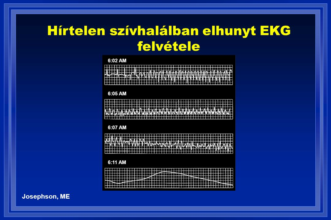 Hírtelen szívhalálban elhunyt EKG felvétele
