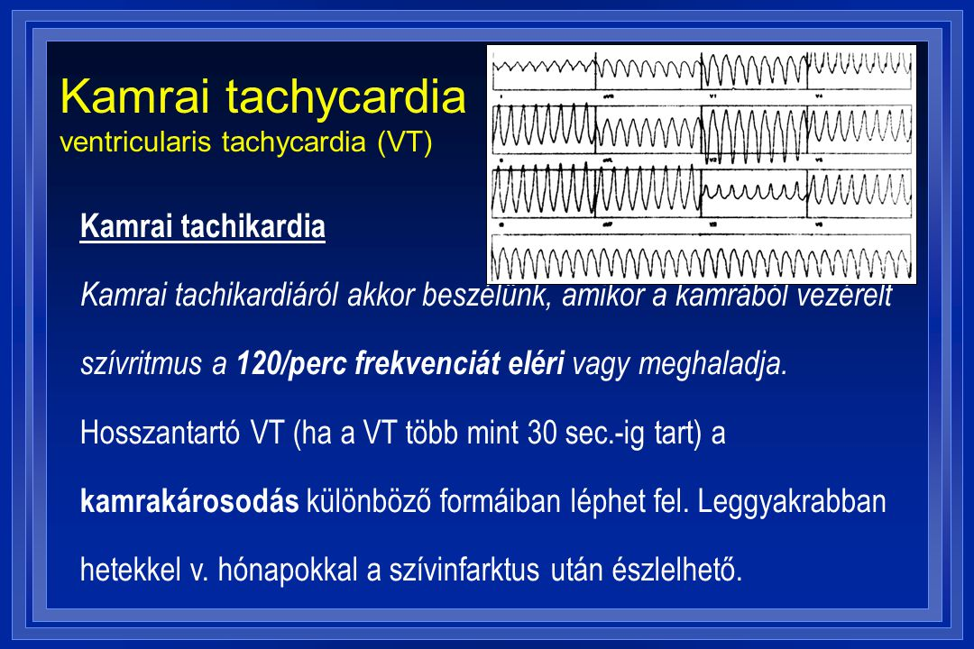 Kamrai tachycardia ventricularis tachycardia (VT)