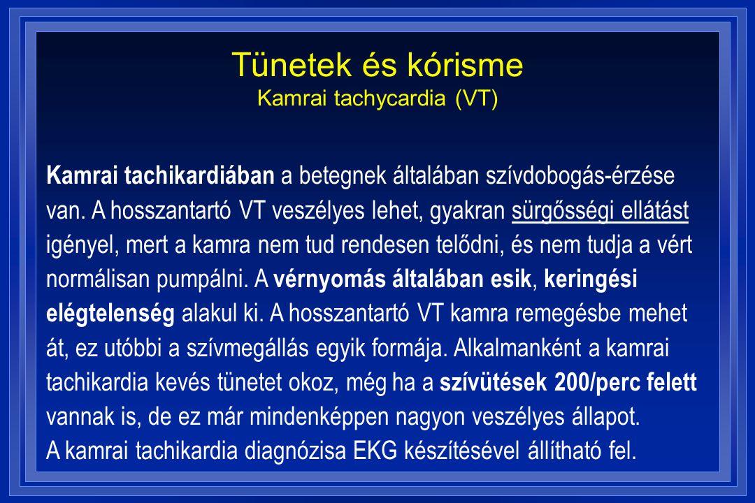 Tünetek és kórisme Kamrai tachycardia (VT)