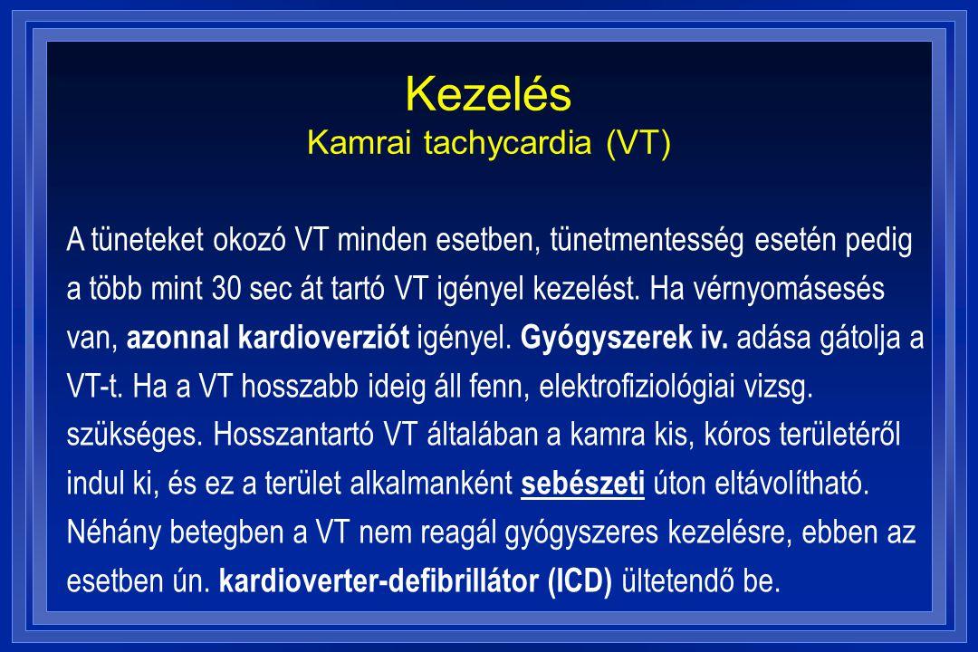 Kezelés Kamrai tachycardia (VT)