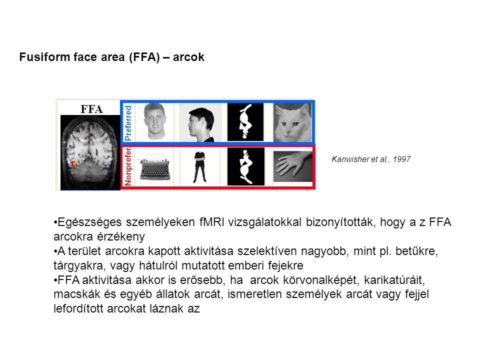 Fusiform face area (FFA) – arcok