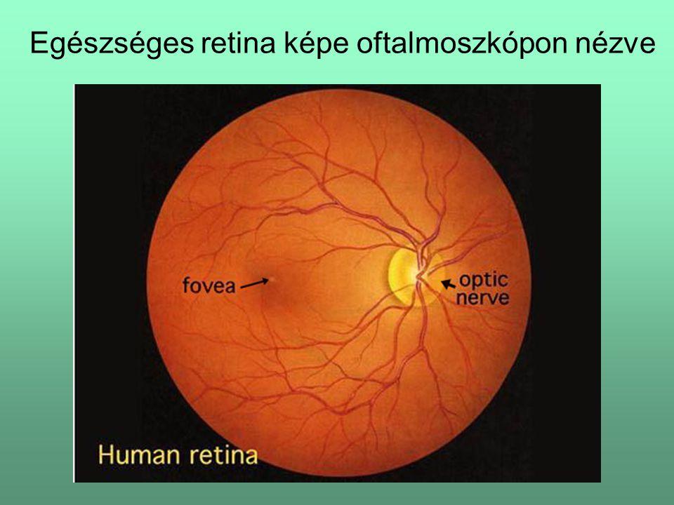 Egészséges retina képe oftalmoszkópon nézve