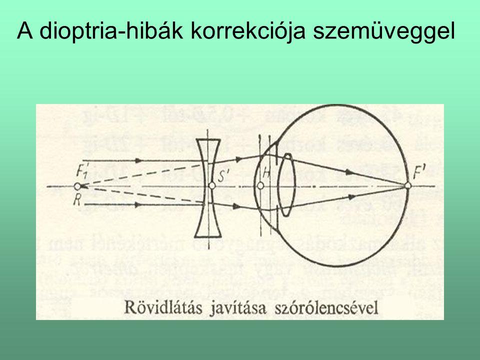 A dioptria-hibák korrekciója szemüveggel