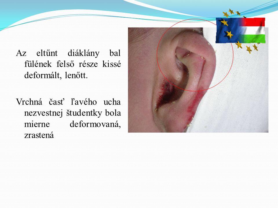 Az eltűnt diáklány bal fülének felső része kissé deformált, lenőtt.