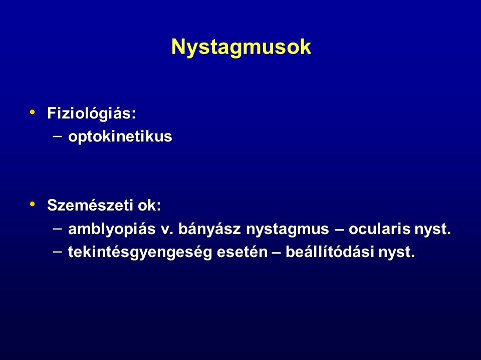 Nystagmusok Fiziológiás: optokinetikus Szemészeti ok: