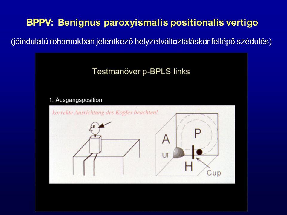 BPPV: Benignus paroxyismalis positionalis vertigo