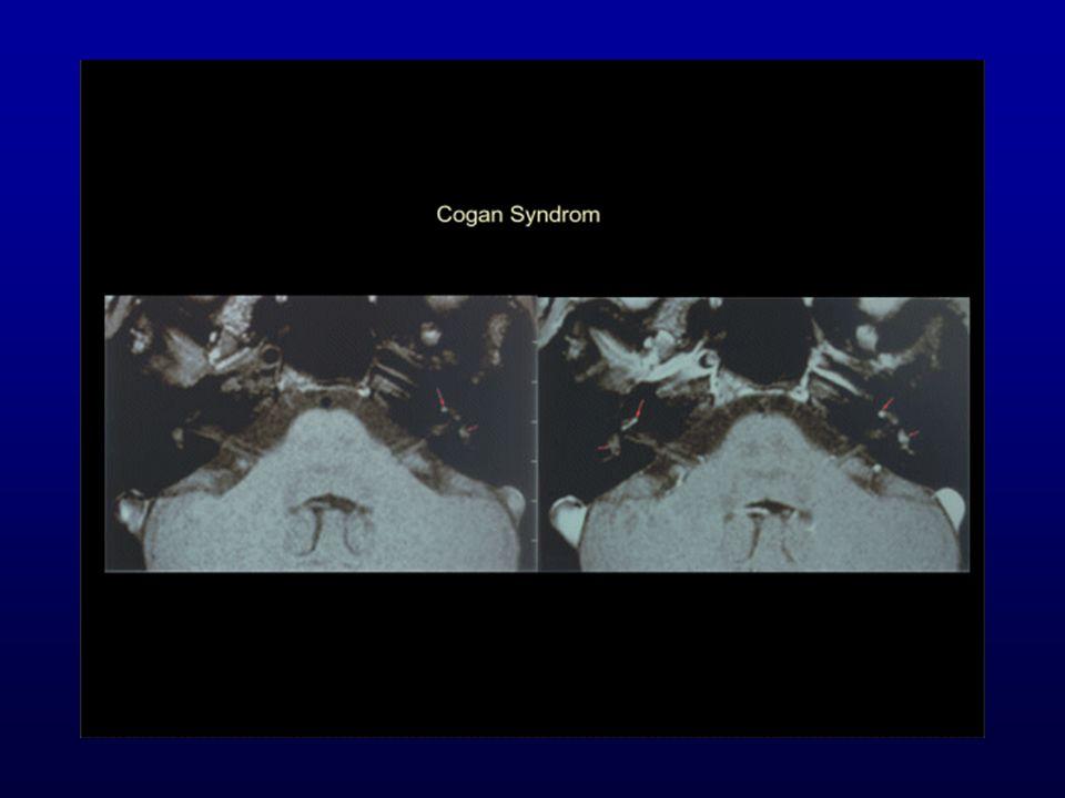 Cogan Syndroma = autoimmunmegbetegedés interstitialis keratitis, audio-vestibularis symptomák.